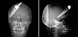 İnanılmaz röntgen filmleri...