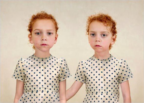Dünyanın en ilginç ikizleri