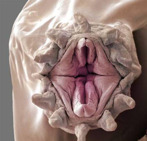 Пенис больше вагины