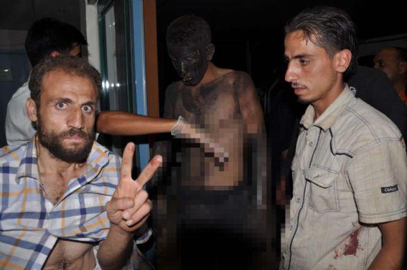 Esad askerleri kimyasal silah kullandı