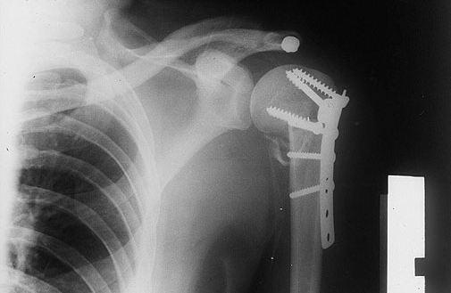 Hayrete düşüren röntgen filmleri