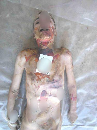 Suriye'de insanlık suçu yeni fotoğraflarla belgelendi
