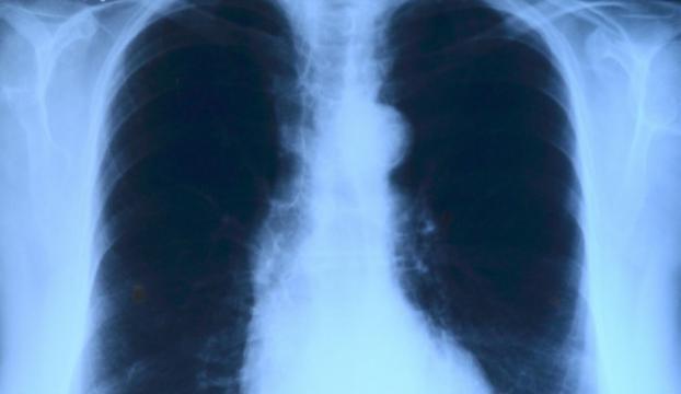 """Akciğer kanserinde yeni şifa kapısı """"yoğun radyoterapi"""""""