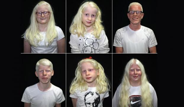 """Dünyanın genetik """"beyaz""""ları: Albinoslar"""