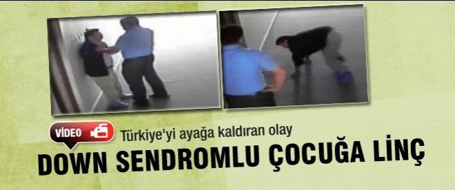 Konya'da Down sendromlu çocuğa dayak