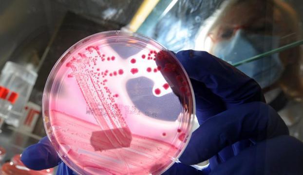 Antibiyotiklere dirençli süper bakteriler