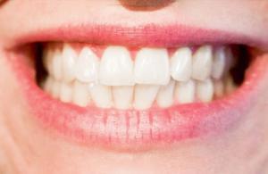 """""""Diş tedavilerinde estetik beklentiler üst düzeyde"""""""