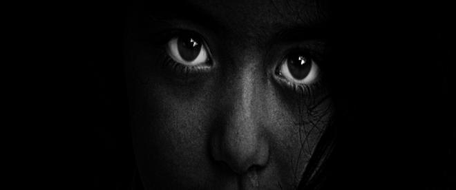 1 milyon Afrikalıya katarakt ameliyatı