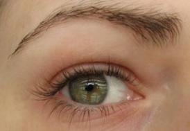 """Prof. Dr. Can: """"Her kırmızı göz, koronavirüs göstergesi değildir"""""""