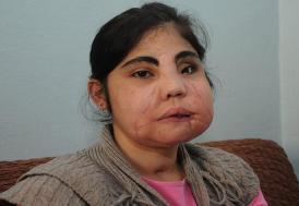 Türkiye'de yüz nakli yapılan ilk kadın hayatını kaybetti