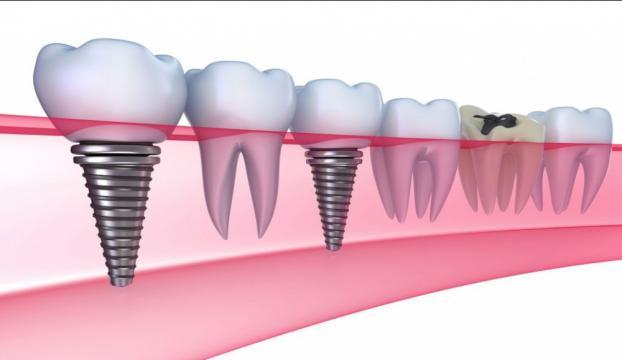 """""""Diş implantı çene kemiğinin erimesini engelliyor"""""""