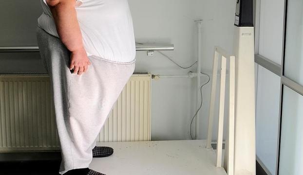 """""""Obezite ameliyatından önce diyet öneriyoruz"""""""