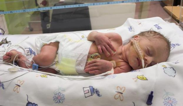 Yılda 15 milyon bebek prematüre doğuyor