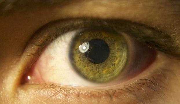 Retinada miyopiye yol açan hücre bulundu