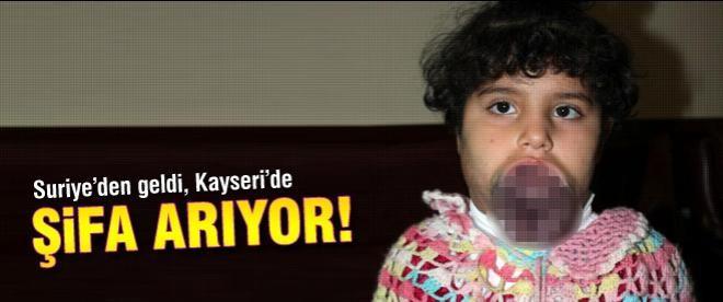 Suriye'den geldi, Kayseri'de şifa arıyor