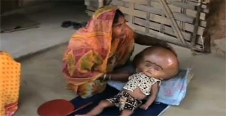 Dünyanın konuştuğu bebekten iyi haber!