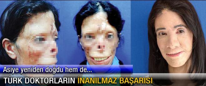 Türk doktorların inanılmaz başarısı